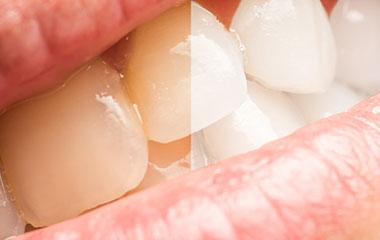 黄ばんだ歯をホワイトニングでしろくしたい