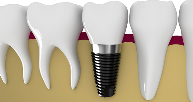 歯を失った~インプラント~