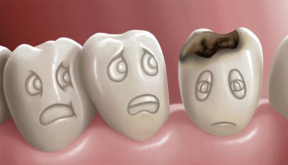 歯が痛い・しみる~一般歯科・根管治療~