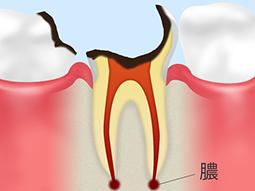 C4【歯根に達した虫歯】