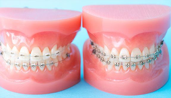 歯並びが気になる~矯正歯科~